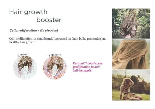 Keranat Hair Loss Reduction & Hair Growth for Women